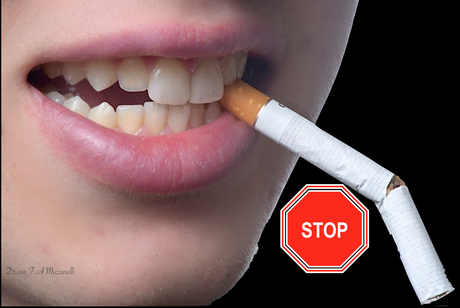 Smesso di fumare denti
